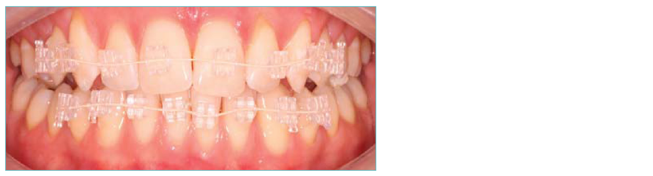 Quick Teeth Straightening Coventry