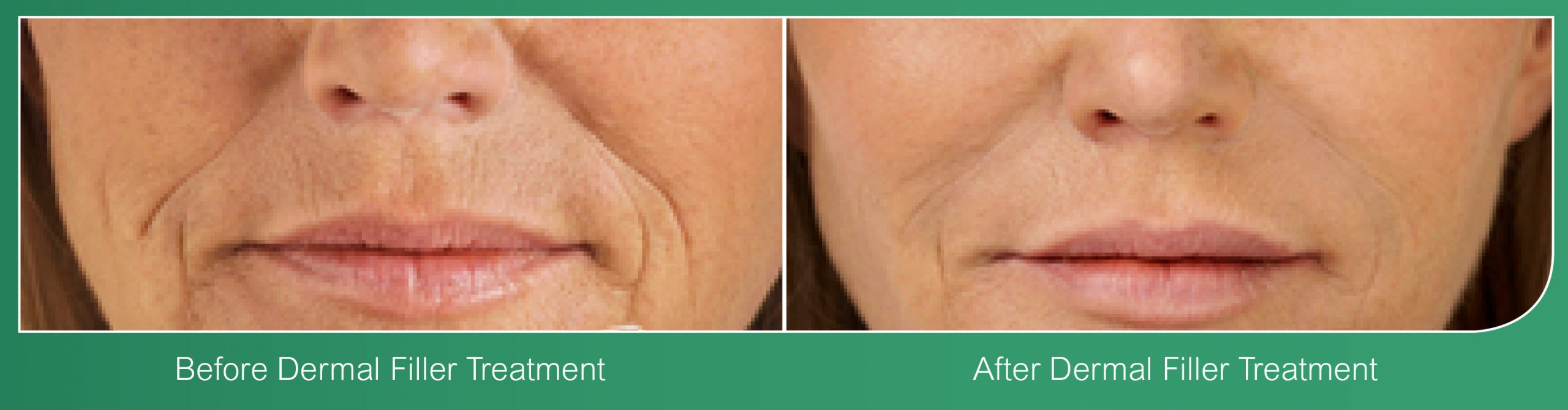 Dermal Fillers Coventry