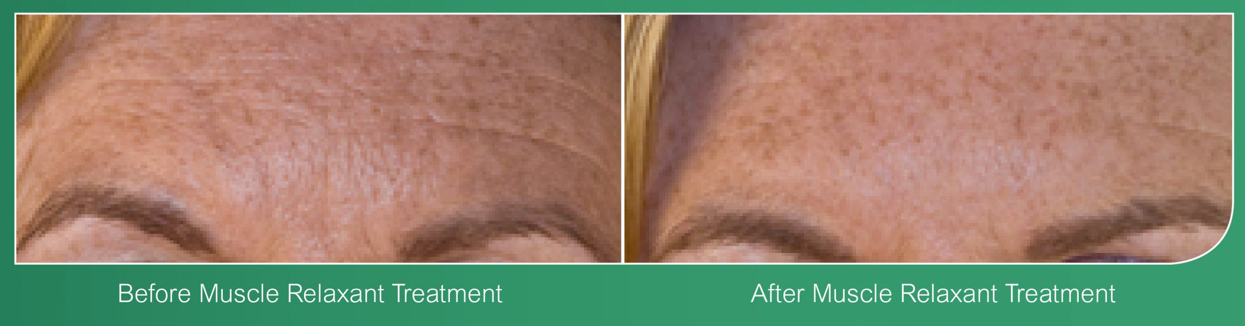 Wrinkle Reduction Coventry